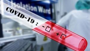 İtalya'da son 24 saate 793 kişi koronavirüs yüzünden hayatını kaybetti!