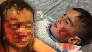 Viranşehir'de köpek saldırısına uğrayan küçük Davut, kurtarılamadı