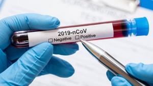 İran'da koronavirüsten rekor ölüm sayısı