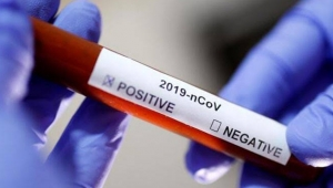 Dünya genelinde koronavirüs bilançosu: Can kaybı 648 bin 476'ya yükseldi!